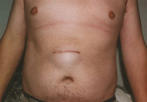incisional hernia pictures repair complications