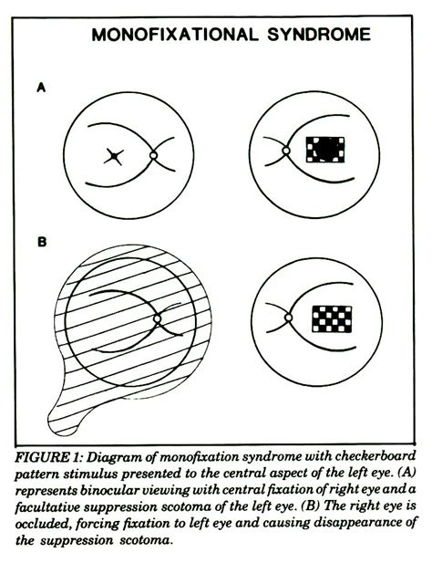 pattern vep in amblyopia suppression and the pattern visual evoked potential