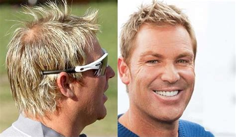 shane warne hair transplant 10 cricketers who went for a hair transplant