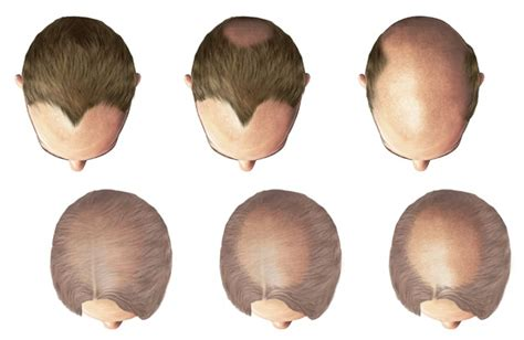 pattern of hair loss pattern hair loss baldness treatment for male female