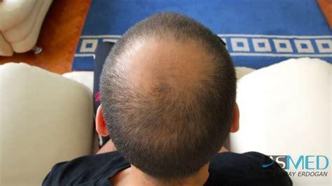 ovation hair reviews hair turkey hairtransplant reviews