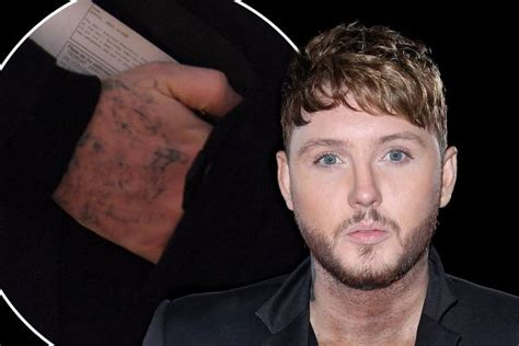 james arthur unveils results of tattoo removal after