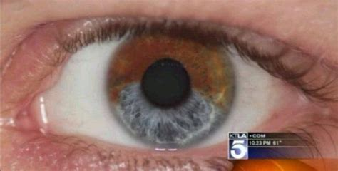surgery to change your eye color laser surgery that can permanently change eye color the