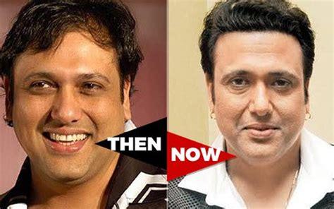 ranvir kapor doing hair transplant ranbir kapoor before hair transplant the hair loss tales
