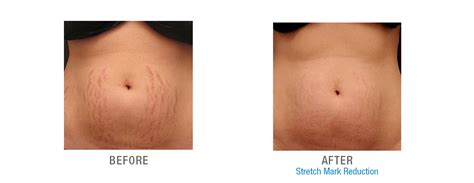 red light therapy lotion for stretch marks laser stretch mark treatment in nyc stretch mark removal