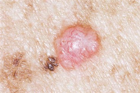 Vegina Senter skin cancer on precancerous skin lesions and skin