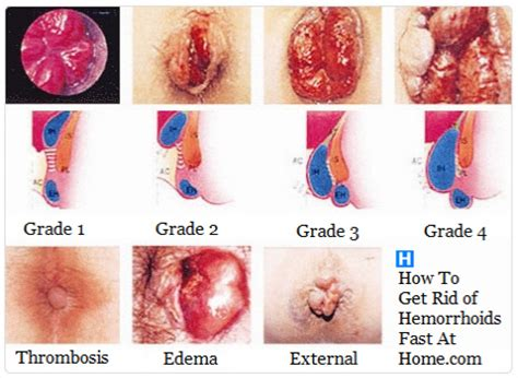 what causes piles how long should you bleed after giving 4 types and stages of hemorrhoids hemorrhoids treatment