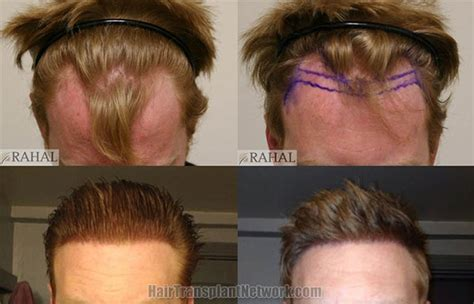 is hair transplant safe dr rahal s hairlines why are they so good dr rahal