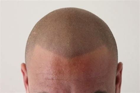 male pattern baldness tattoo 73 best images about micropigmentacion on pinterest male
