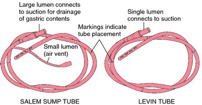 t tube | definition of t tube by medical dictionary
