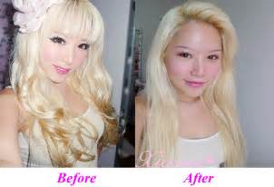 Before Surgery Chatter Busy Xiaxue Plastic Surgery