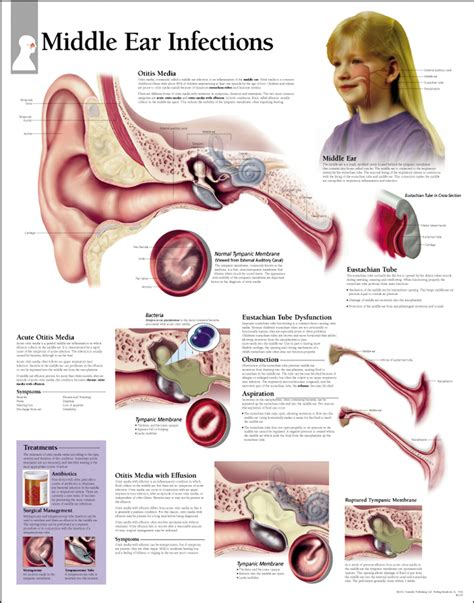 inner ear infection middle ear infections paper scientific publishing