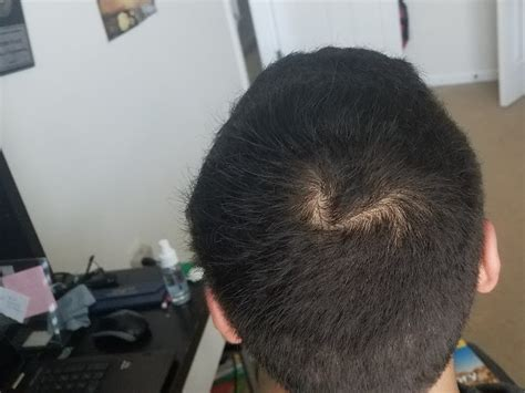 how to hid thinning hair on crown area short1 jpg