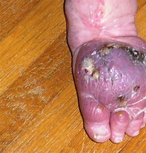 Imagenes De Heridas Asquerosas | pie infectado con staphylococcus aureus fotos horribles