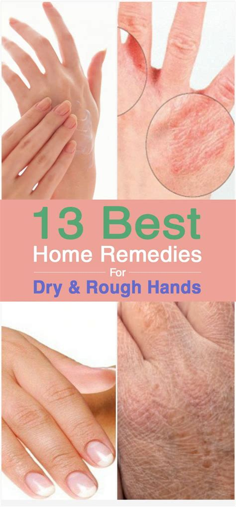 8 Best Home Made Treatments by 13 Best Home Remedies For And