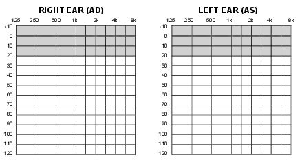 blank audiogram template audiogram form related keywords audiogram form