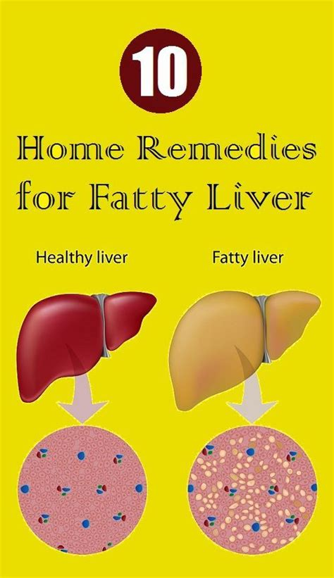Home Detox Remedies For Liver by Home Remedies For Fatty Liver Disease Fatty Liver
