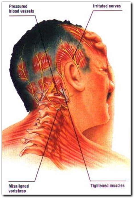sydney osteopath, headaches, pain relief