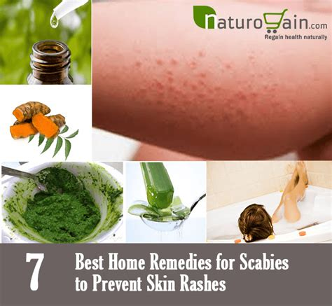 Scabies Home Treatment by 7 Best Home Remedies For Scabies To Prevent Skin Rashes
