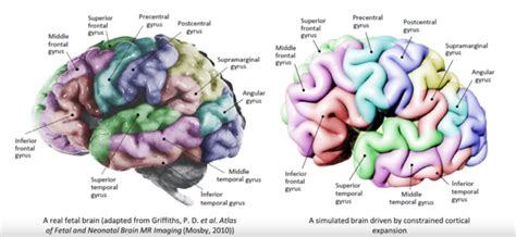 3d brain diagram 3d printing helps researchers discover why the human brain
