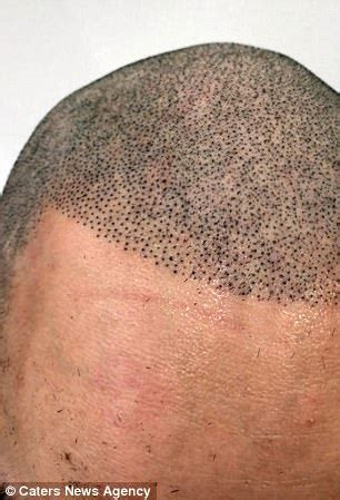 tattoo looks like pen man cries with joy after his botched hair tattoo is fixed