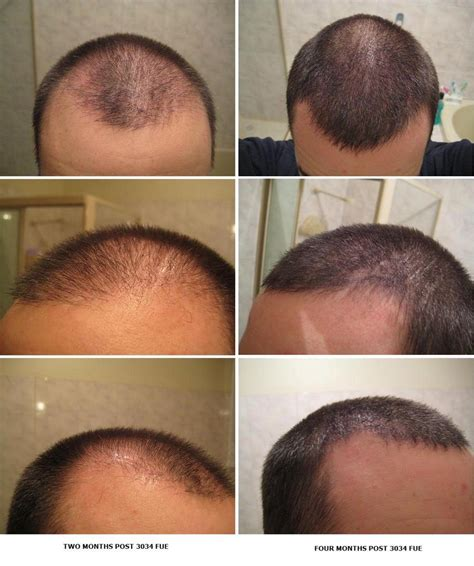 hair transplant month by month pictures image