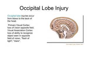 occipital blindness cns 17