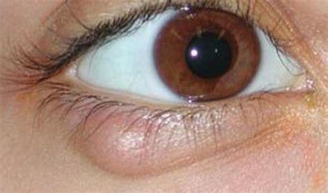 has swollen eye swollen eyelid home remedies cure and lower swollen eyelids naturally fast