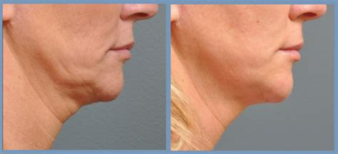 aging jaw line aging jaw line aging jaw line non invasive non surgical