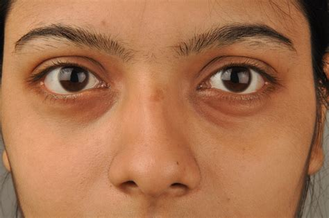 black under eye if you have dark eye circles this is what s happening