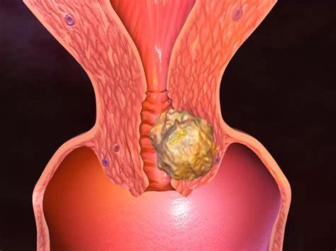 Wanita 2 Rahim Obat Tradisional Untuk Tumor Rahim Solusi Cara Mengobati