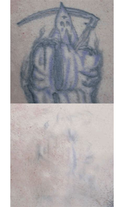 tattoo removal using saline solution removal solution all saline removal