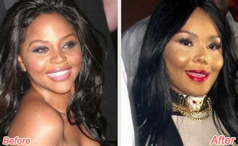 celebrity plastic surgery 24 before after pictures 2015 16 shocking celebrity before after transformations