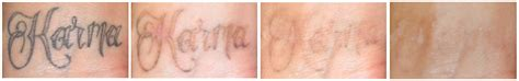 laser tattoo removal charlotte nc 100 picosure removal laser is removal