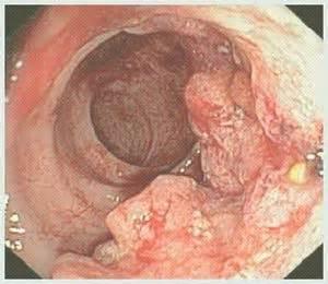 stuhl bei darmkrebs darmkrebs