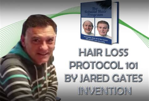 dr blount hairloss fraud jared gates scam newhairstylesformen2014 com