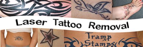 tattoo prices tulsa anticipation tattoo removal