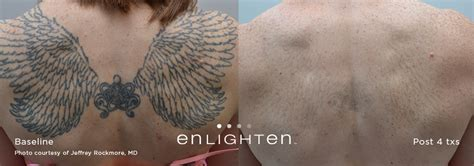 post tattoo care laser removal post care tips