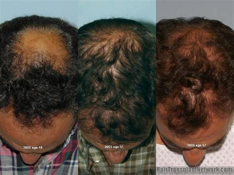 female pattern hair loss dutasteride dealing with the progressive nature of male pattern