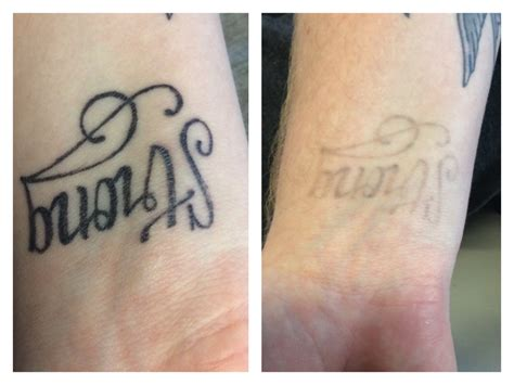 tattoo removal after 1 session before after pictures maine laser clinic