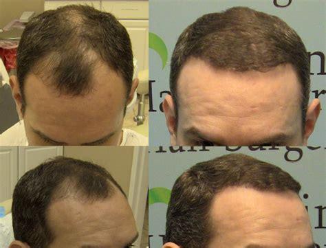 dr yates fue cost per graft frontal fue hair transplant 2000 hair grafts carolina