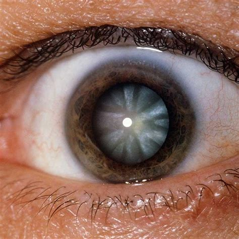 how to change your eye color to light brown naturally 7 things your eye color says about your health optometry