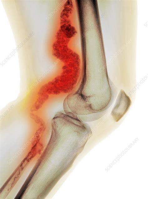 below knee utation knee in acdc x stock image c023 0739 science