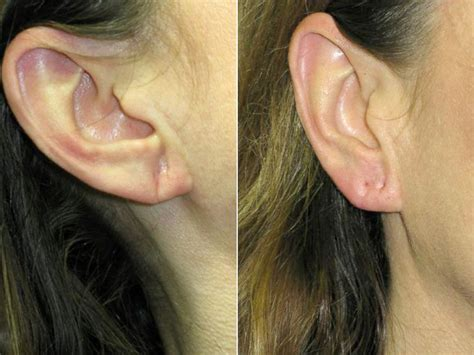 female ear lobes take years off your ears with eartox abc news