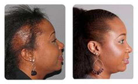 hair transplant for black women bosley transplant before after patient pictures on
