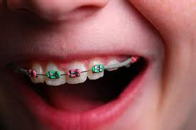 apparecchio interno denti costo il sorriso bambino con l apparecchio bambino naturale