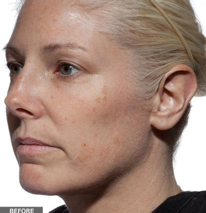 tria age defying laser before and after photos tria age defying laser product review beauty realty