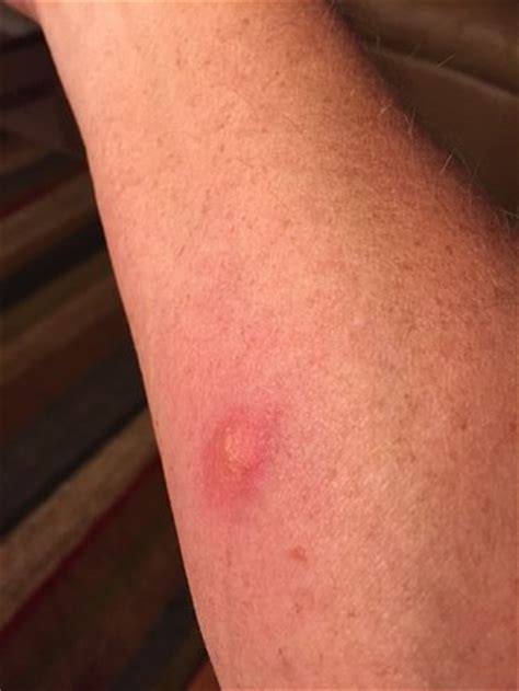 bed bug bites picture of caribbean resort and villas