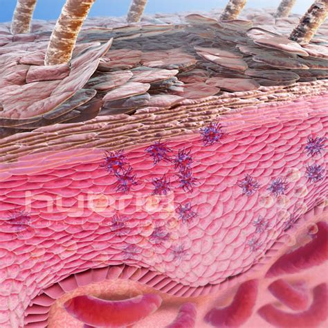 Obat Alami Kulit Mengelupas obat oles tradisional gatal mengelupas kulit kepala