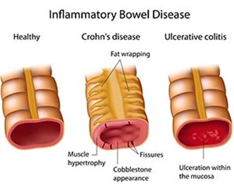 Stool Disease by Inflammatory Bowel Disease Ibd Midwest Endoscopy Center